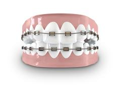 Teeth fitted with braces Stock Illustration