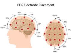 EEG electrode placement Stock Illustration