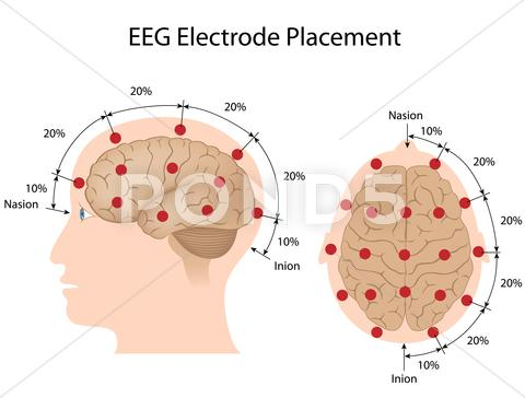 Stock Illustration of EEG electrode placement