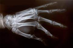 x-ray of hand - stock photo