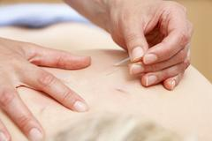 Acupuncturist treating female client - stock photo