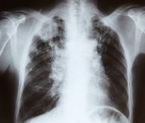 Chest x-ray Stock Photos