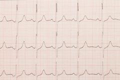 Cardiogram close-up Stock Photos