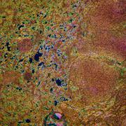 lymphatic node tissue - stock photo