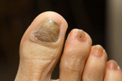 Chemotherapy fungus toenail Stock Photos