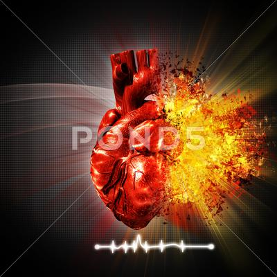 Stock Illustration of heart attack. abstract medical and health care backgrounds