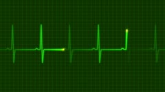 Electrocardiogram 1 Stock Footage