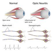 Optic neuritis Stock Illustration