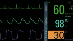 Patient Monitor Vital Signs Flat Line Stock Footage