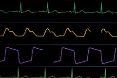 Patient Vital Signs Monitor Electric Waves Close Up Stock Photos