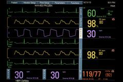 Patient Vital Signs Waves Frozen Stock Photos