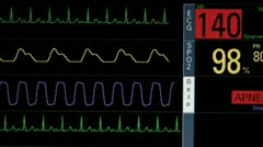Patient Vital Signs Critical Stock Footage