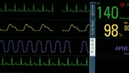 Stock Video Footage of Patient Vital Signs Apnea Alert