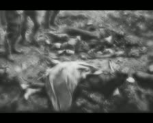 World War 1 - Injured Soldiers Stock Footage