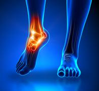 Ankle pain - detail - stock photo