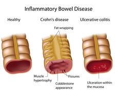 comparing inflammatory bowel disease - stock illustration