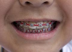 red braces - stock photo