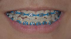blue braces - stock photo