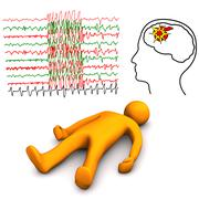 Apoplectic and epileptic stroke Stock Illustration