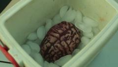 Brain organ organs black market Stock Footage