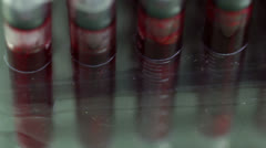 Blood sample blood test Stock Footage