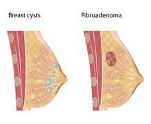 Common benign breast lumps Stock Illustration