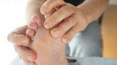 Man checks athletes foot between toes Stock Footage