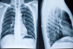 X-ray valokuva ihmisen elinten Kuvituskuvat