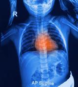 Children chest x-rays Stock Photos