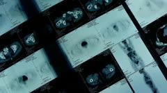 Moving human orage pet-ct scan,medical X-ray,Cancer metastasis. Stock Footage