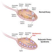 Polycystic ovary syndrome Stock Illustration