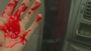 Car accident injury blood bloody hand 1 Stock Footage