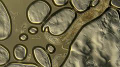 Caenorhabditis elegans Arkistovideo