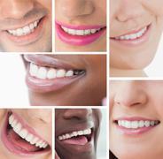 Stock Photo of Collage of white smiles