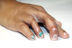 Finger is defective. Stock Photos