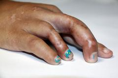 finger is defective. - stock photo