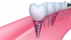 Dental implants in the gum Stock Footage
