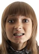 girl smiles with bracket on teeth - stock photo