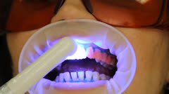 Teeth Whitening. Activation of the gel polymerization light. stomatology - stock footage