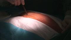 Cardiac surgery Stock Footage