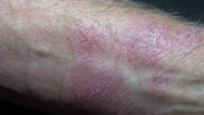 Stock Video Footage of skin rash
