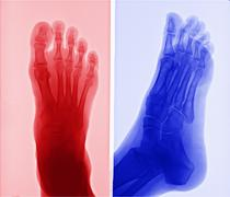 X-ray picture of foot Stock Photos