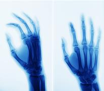 X-ray picture of hand Stock Photos