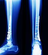 X ray of fractures bone Stock Photos