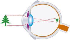 vision, eyeball, optics, lens system - stock illustration