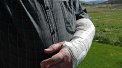 Injured arm in protective cast mature man HD 8212 Stock Footage