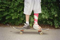 Young man with leg in plaster standing on skateboard Stock Photos
