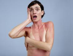 A sunburnt woman - stock photo