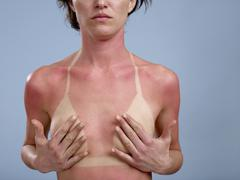 A sunburned woman Stock Photos