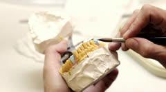 Stock Video Footage of Dental implants (brushing)